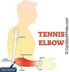 muscles., coude, monde médical, bras, jointure, vecteur, fitness, tennis, anatomie, os, illustration, diagramme