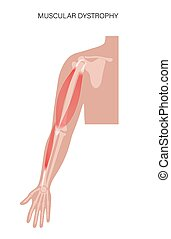 Muscular dystrophy concept. Disease in human arm muscles. Muscular system and bones in male silhouette. Anatomical poster of biceps brachioradialis and brachialis. Medical vector illustration of hand.