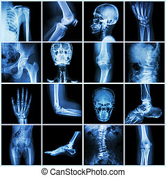 muslo, antebrazo, espalda, palma, humano, toe), pelvis, ...