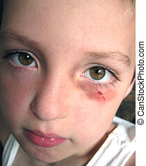 My First Shiner - Little boy with a bruise around his eye.
