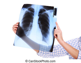 My lungs - A picture of lungs x-ray over white background