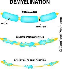 myelin., axon., vetorial, mundo, experiência., esclerose, múltiplo, danificado, isolado, sclerosis., destruição, infographics., myelin, neurônio, afetado, ilustração, bainha, day.