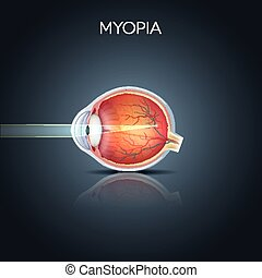 Myopia. Myopia is being short sighted (near sighted). Far ...
