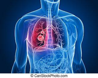 nádor, plíce