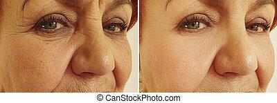 na, oud, gezicht, behandeling, vrouw, rimpels, voor