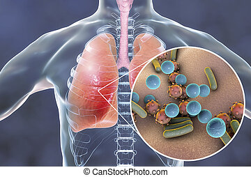 nahaufnahme, mikroben, lungen, begriff, medizinische abbildung, pneumonia, menschliche , ausstellung, ansicht