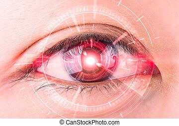 nahaufnahme, von, frau, rotes auge, der, zukunftsidee, kontaktlinse, auge, grauer star