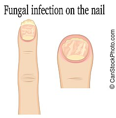 Nail fungal infection - Fungal infection on the fingers of...