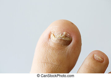 Nail fungus on a toenail