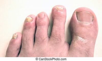 Nail fungus. Toenails with fungal infection.