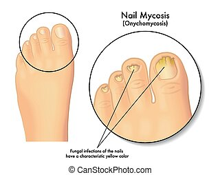 Nail Mycosis - medical illustration of the symptoms of nail...