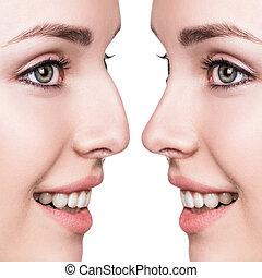 nariz, cosmético, hembra, antes, cirugía, después