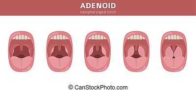 Nasal and throat, nasopharynx diseases. Adenoids diagnosis...