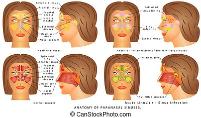 Nasal sinus. Human Anatomy - Sinus Diagram. Anatomy of the...