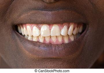 natural, dentes
