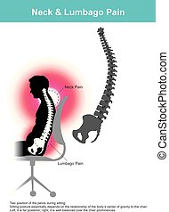 Neck & Lumbago Pain. Illustration. - The lumbar region is...