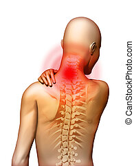 Neck pain - Back-pain located in the neck area. Digital ...