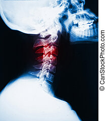 neck x-ray and pain - detail of neck x-ray image and red...