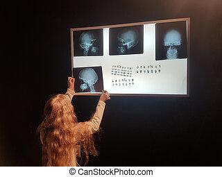 negatoscope, mooi meisje, information., belangrijk, gebruiken, aanzicht