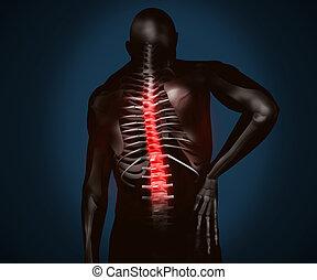 negro, digital, figura, con, dolor de espalda
