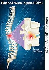 nerf, pincé, corde, spinal, diagramme