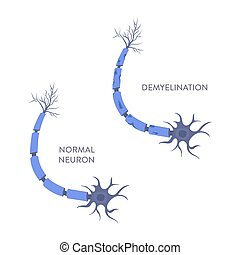Nerve cell demyelination process medical infographic poster...