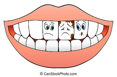 Nervous Teeth - Cartoon teeth on either side of a sickly...