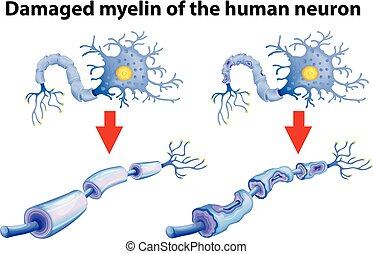 neurone, dammaged, humain, myelin