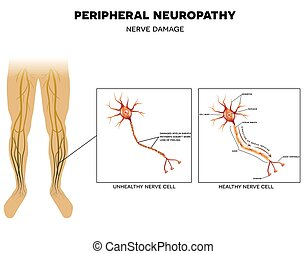 Neuropathy, nerve damage - Neuropathy, damage of peripheral ...