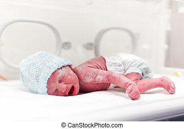 Newborn boy covered in vertix in incubator - Newborn baby...