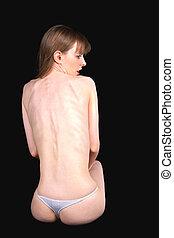 niña, anoréxico