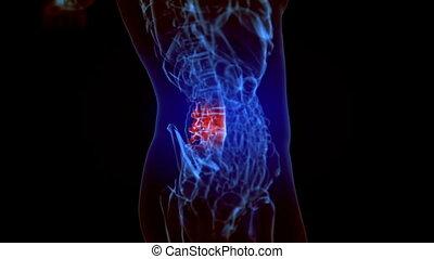 niższy, ból, szkielet, kręgosłup, wstecz, ożywienie, rentgenowski