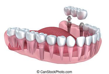 niższy, render, stomatologiczny, odizolowany, przeźroczysty, zęby, biały, wpajać, 3d
