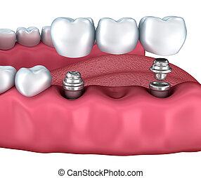 niższy, stomatologiczny, odizolowany, zęby, biały, wpajać, 3d