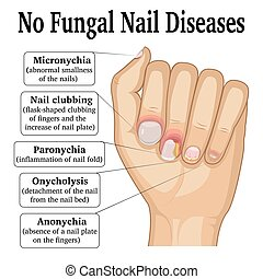 No Fungal Nail Disease