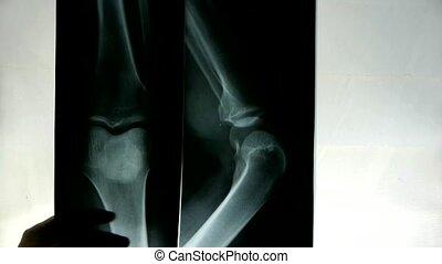 noga, dłoń, leczy, ręka, połączenia, etiuda, &