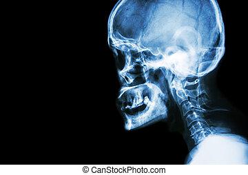 normální, lidský, lebka, a, krční trn