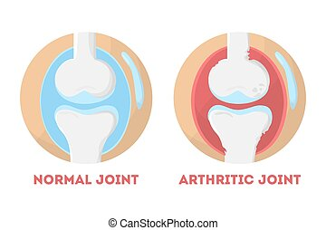 normal, anatómico, coyuntura, infographic, humano, artrítico