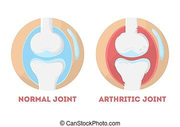 normal, anatômico, conjunto, infographic, human, artrítico