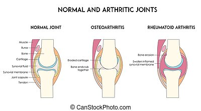 Normal and arthritic human joints. Types of arthritis. ...