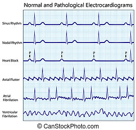 Normal and diseased ecg collection - Normal and pathological...