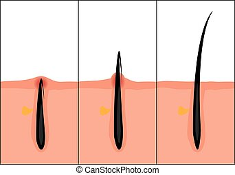 Normal and ingrown hair vector illustration. Skincare ...