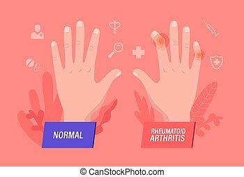Normal and Sick Hands with Rheumatoid Arthritis, ...
