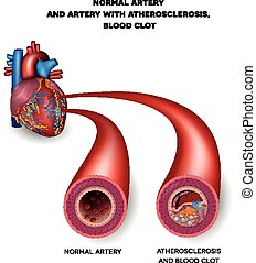 Normal artery and unhealthy artery with blood clot. Plaque...