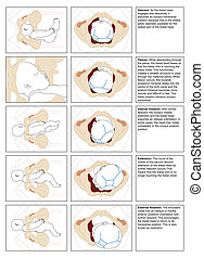 Normal birth showing detail of fetal movement during delivery through the birth canal