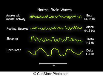 normal-brain-waves