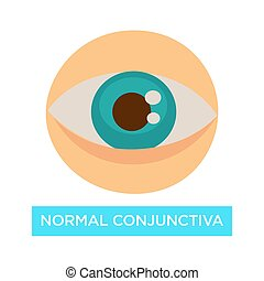 Normal conjunctiva healthy eye pupil and iris ophthalmology...