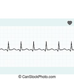 Normal electrocardiogram ECG. EPS 8 vector file included