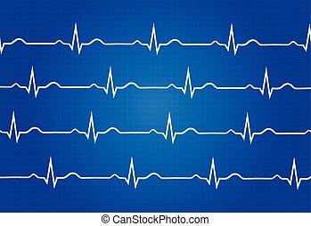 Normal Electrocardiogram Graphic