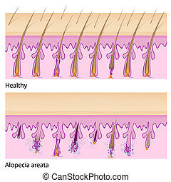 Normal hair and Alopecia areata - Normal hair tissue and...